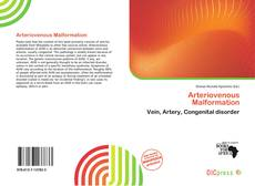 Bookcover of Arteriovenous Malformation