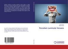 Bookcover of Porcelain Laminate Veneers