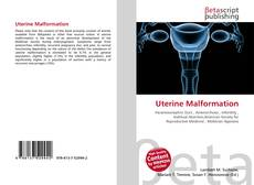 Bookcover of Uterine Malformation