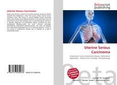 Uterine Serous Carcinoma kitap kapağı