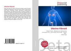 Bookcover of Uterine Fibroid