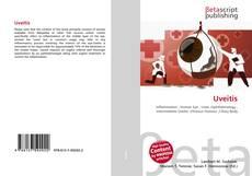 Uveitis kitap kapağı