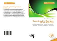 Hypertrophie Bénigne de la Prostate的封面