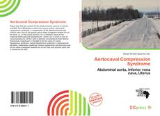 Aortocaval Compression Syndrome的封面