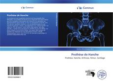 Bookcover of Prothèse de Hanche