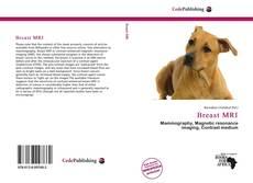 Buchcover von Breast MRI