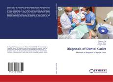 Bookcover of Diagnosis of Dental Caries