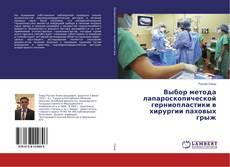 Bookcover of Выбор метода лапароскопической герниопластики в хирургии паховых грыж
