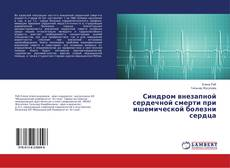 Bookcover of Синдром внезапной сердечной смерти при ишемической болезни сердца