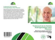 Bookcover of Traitement de la Calvitie Androgénétique chez l'Homme