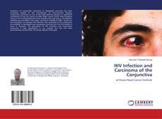 Copertina di HIV Infection and Carcinoma of the Conjunctiva