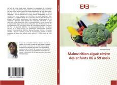 Bookcover of Malnutrition aiguë sévère des enfants 06 à 59 mois