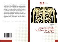 Couverture de Imagerie des kystes hydatiques du poumon chez l'enfant