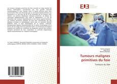 Buchcover von Tumeurs malignes primitives du foie