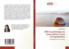 Buchcover von IRM et pathologie du corps calleux: revue iconographique