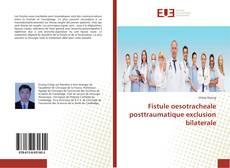 Обложка Fistule oesotracheale posttraumatique exclusion bilaterale