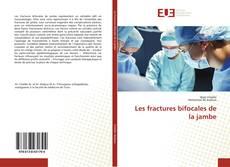 Buchcover von Les fractures bifocales de la jambe