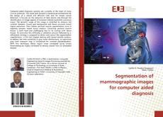 Portada del libro de Segmentation of mammographic images for computer aided diagnosis