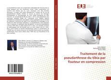 Couverture de Traitement de la pseudarthrose du tibia par fixateur en compression