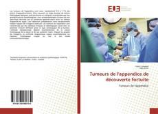 Buchcover von Tumeurs de l'appendice de découverte fortuite