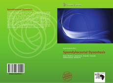 Bookcover of Spondylocostal Dysostosis