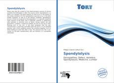 Bookcover of Spondylolysis