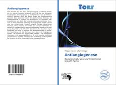 Bookcover of Antiangiogenese