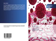 Bookcover of Lip cancer