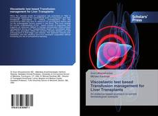 Bookcover of Viscoelastic test based Transfusion management for Liver Transplants