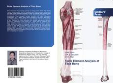 Bookcover of Finite Element Analysis of Tibia Bone