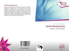 Bookcover of Senile Osteoporosis