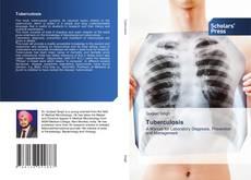 Couverture de Tuberculosis