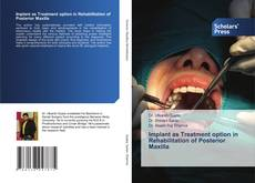 Bookcover of Implant as Treatment option in Rehabilitation of Posterior Maxilla