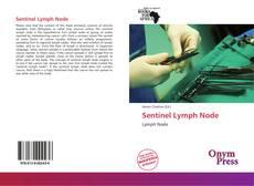 Bookcover of Sentinel Lymph Node