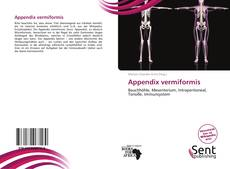 Bookcover of Appendix vermiformis