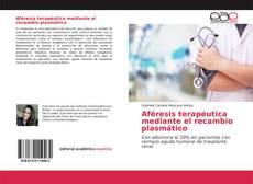 Capa do livro de Aféresis terapéutica mediante el recambio plasmático