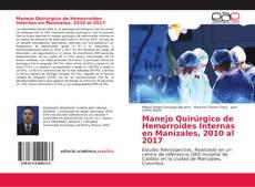 Portada del libro de Manejo Quirúrgico de Hemorroides Internas en Manizales, 2010 al 2017