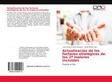 Bookcover of Actualización de los factores etiológicos de los 2º molares incluidos