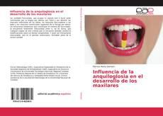 Couverture de Influencia de la anquiloglosia en el desarrollo de los maxilares