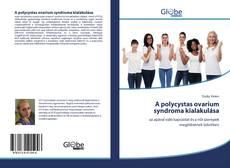 Borítókép a  A polycystas ovarium syndroma kialakulása - hoz