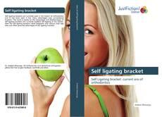 Bookcover of Self ligating bracket