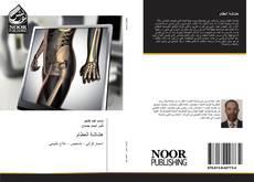 Bookcover of هشاشة العظام