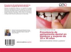 Bookcover of Prevalencia de apiñamiento dental en hombres y mujeres de 18 a 30 años