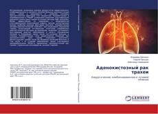 Обложка Аденокистозный рак трахеи