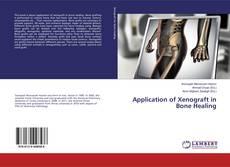 Application of Xenograft in Bone Healing的封面
