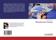 Bookcover of Photodynamic Therapy