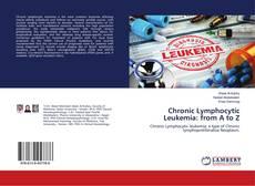 Buchcover von Chronic Lymphocytic Leukemia: from A to Z