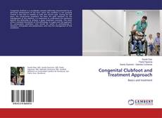 Bookcover of Congenital Clubfoot and Treatment Approach