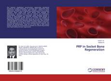 Couverture de PRP in Socket Bone Regeneration