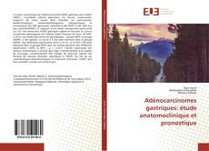 Bookcover of Adénocarcinomes gastriques: étude anatomoclinique et pronostique